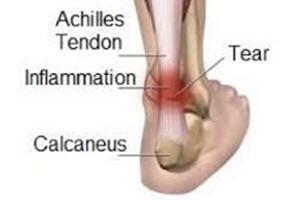 achillies-tendon-pain
