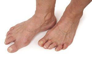 arthritis-in-the-feet