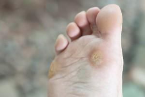 corns-and-callus