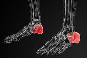 heel-bone-fracture