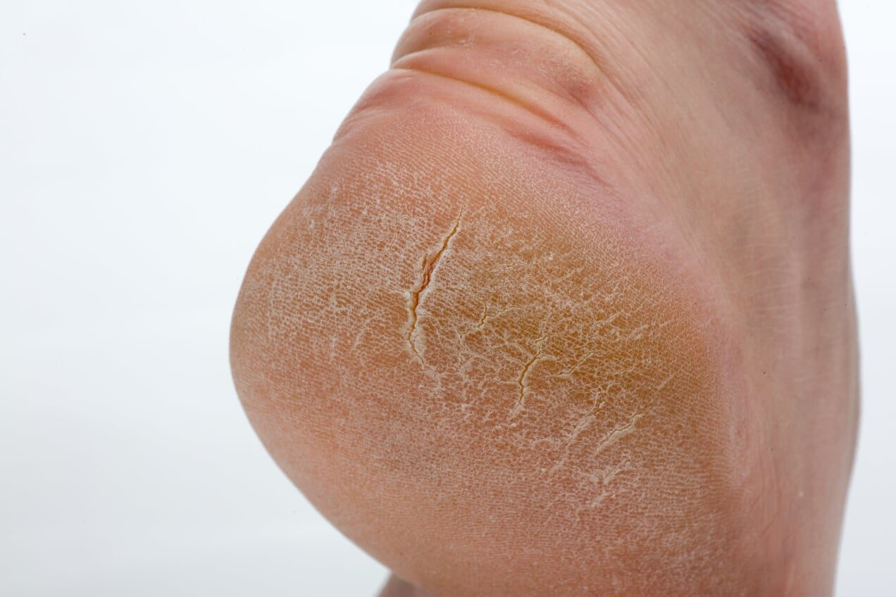 Blog Archive - Page 4 of 5 - Brindabella Podiatry